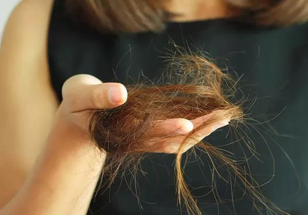 Из-за чего выпадают волосы на голове у девушек. Причины выпадения волос у женщин.