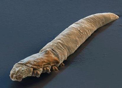 Кожные клещи - Demodex Folliculorum