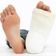 Что можно сделать до приезда скорой помощи, если у пострадавшего перелом конечности